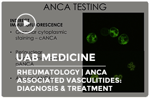 ANCA Associated Vasculitides: Diagnosis & Treatment